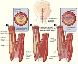 What is Carotid stenting?