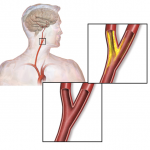 What causes blockage in my arteries?