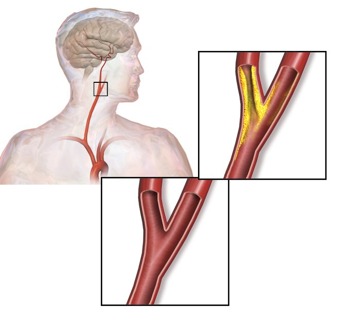 Why Carotid Artery Repair is Necessary