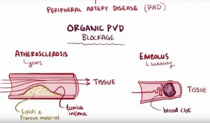 What is peripheral vascular disease (PVD)?