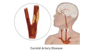 Vascular Surgery Overview
